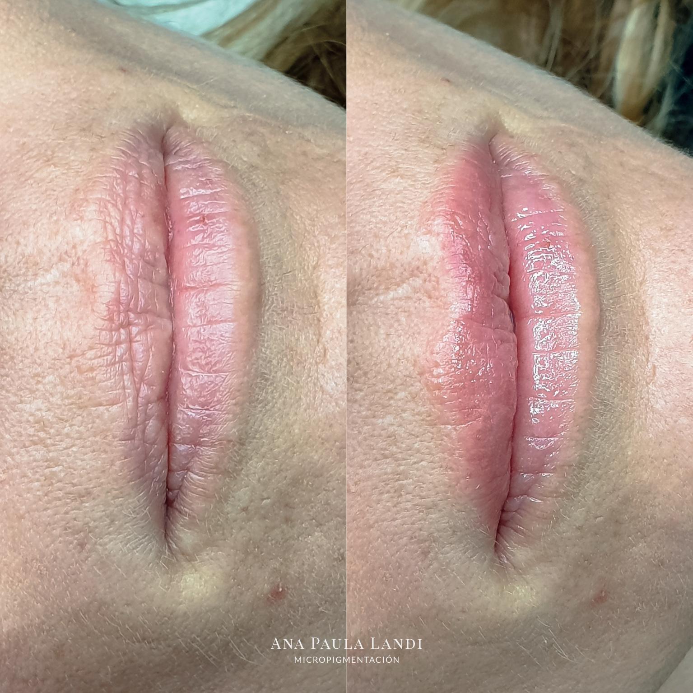 micropigmentacion de cicatrices por Ana Paula Landi