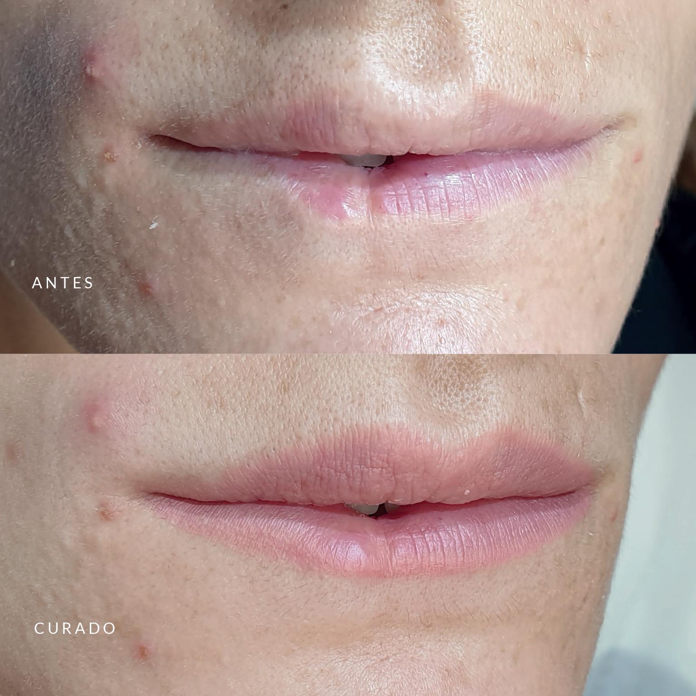 Micropigmentacion de labios con cicatrices por Ana Paula Landi