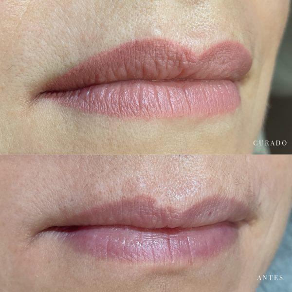 micropigmentación cicatrices