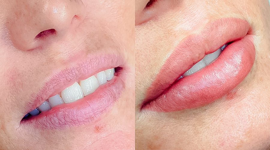 micropigmentación de labios por Ana Paula Landi en Barcelona, experta en micropigmentación